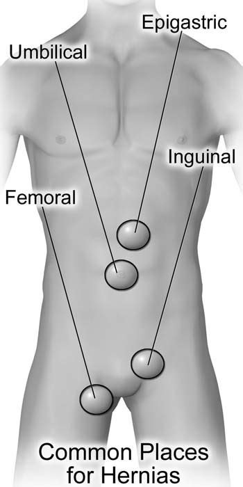 Types of Hernias and their Treatment - AT Surgical