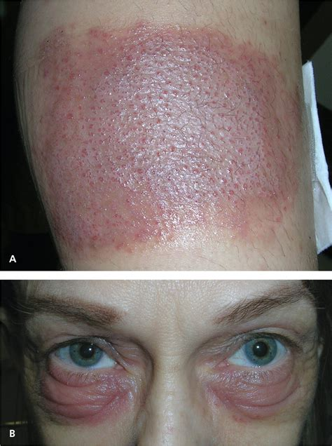 Diagnosis and Management of Contact Dermatitis - American
