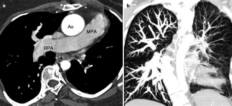 Abnormal Relationship Between Ventricles and Great Vessels